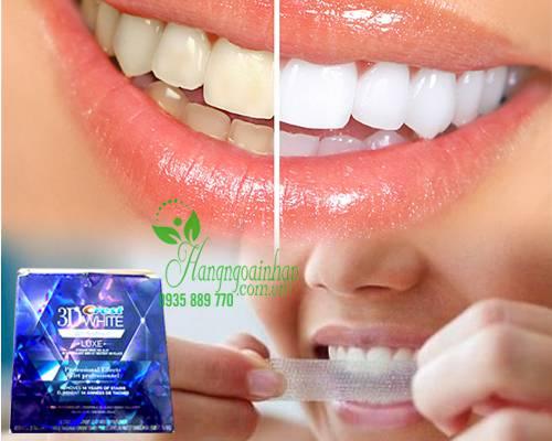 Cách chăm sóc răng miệng cho trẻ em hiệu quả