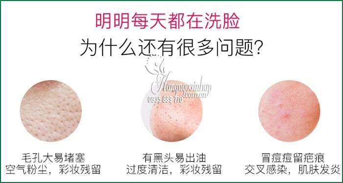 Máy rửa mặt WellDerma Cleansing Fish xanh, hồng của Hàn Quốc 2