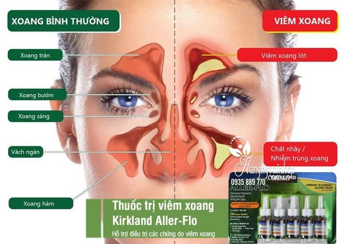 Thuốc trị viêm xoang Kirkland Aller-Flo bộ 5 lọ chính hãng Mỹ 7