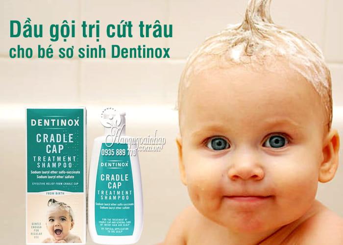 Dầu gội trị cứt trâu cho bé sơ sinh Dentinox 125ml Anh Quốc 7