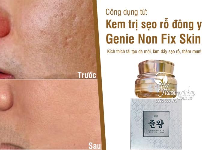 Kem trị sẹo rỗ đông y Genie Non Fix Skin 30g Hàn Quốc 7