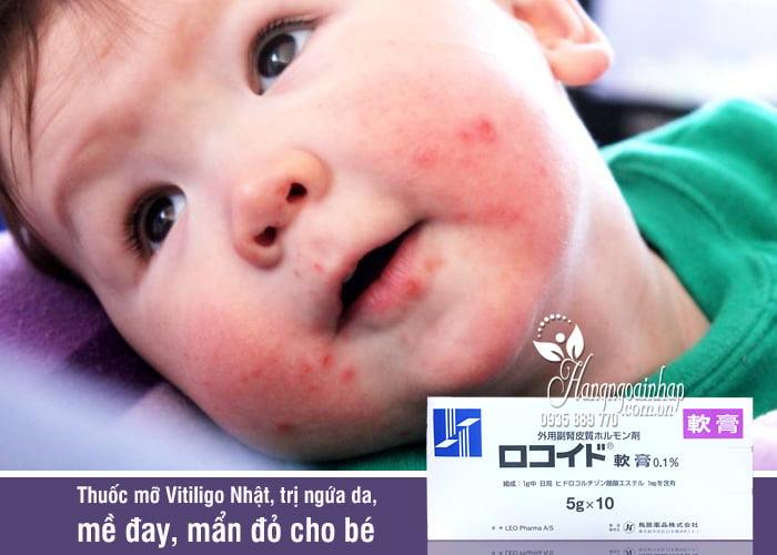 Thuốc mỡ Vitiligo Nhật, trị ngứa da, mề đay, mẩn đỏ cho bé 2