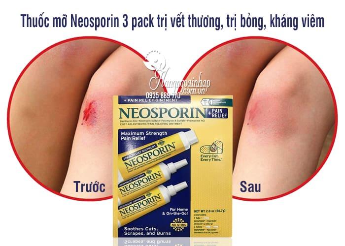 Thuốc mỡ Neosporin 3 pack trị vết thương, trị bỏng, kháng viêm 7