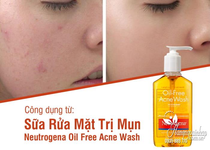 Sữa Rửa Mặt Trị Mụn Neutrogena Oil Free Acne Wash 8
