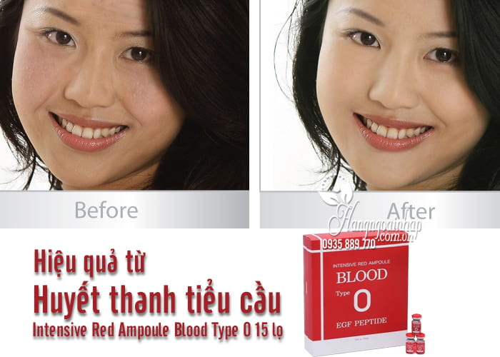 Huyết thanh tiểu cầu Intensive Red Ampoule Blood Type O 15 lọ 7