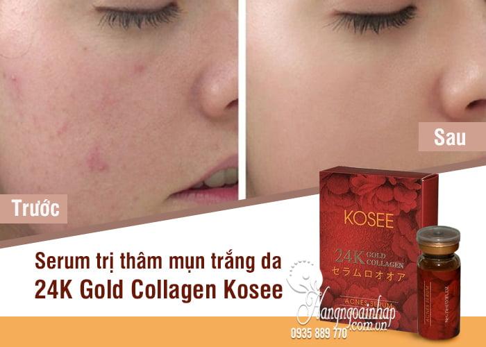 Serum mụn trắng da 24K Gold Collagen Kosee của Nhật Bản 9
