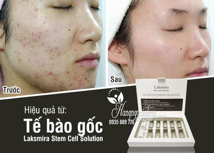 Tế bào gốc Laksmira Stem Cell Solution 10 lọ x 5ml Hàn Quốc 7