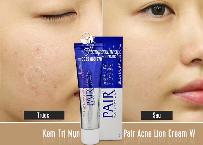 Kem Trị Mụn Pair Acne Lion Cream W 24g Của Nhật 2