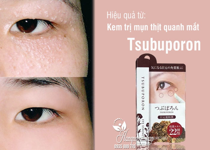 Kem trị mụn thịt quanh mắt Tsubuporon tốt nhất Nhật Bản 7