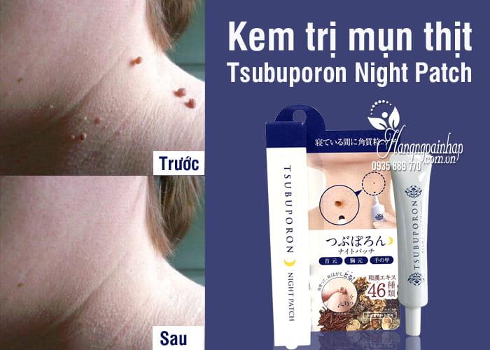 Kem trị mụn thịt Tsubuporon Night Patch 20g của Nhật, cho body 2