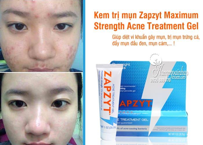 Kem trị mụn Zapzyt Maximum Strength Acne Treatment Gel của Mỹ 7