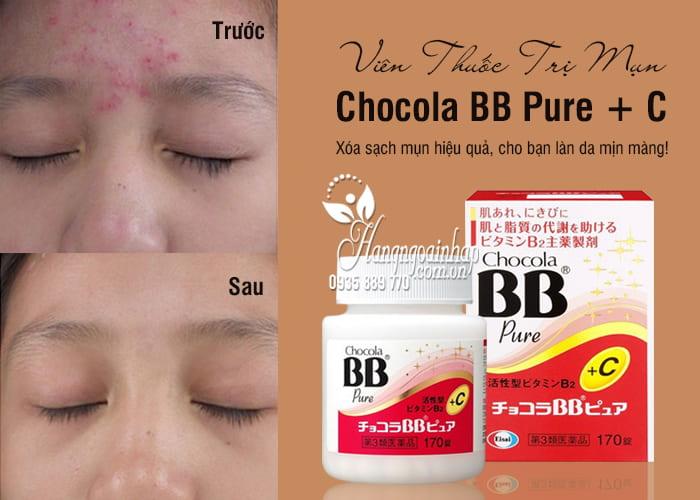 Viên Thuốc Trị Mụn Chocola BB Pure + C Hộp 170 Viên 1