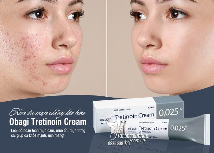 Kem trị mụn chống lão hóa Obagi Tretinoin Cream 0,025% Mỹ 3