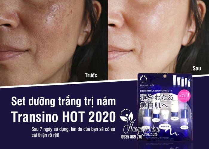 Set dưỡng trắng trị nám Transino 5 món 7 ngày cực HOT 2020 1