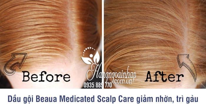 Dầu gội chăm sóc da đầu Beaua Medicated Scalp Care 400ml 2