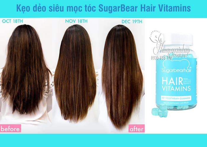 Kẹo dẻo siêu mọc tóc SugarBear Hair Vitamins của Mỹ 60 viên 5