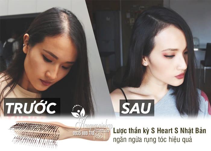 Lược thần kỳ S Heart S Nhật Bản, ngăn ngừa rụng tóc hiệu quả 4