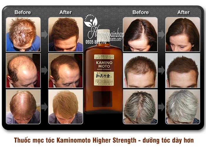 Thuốc mọc tóc Kaminomoto Higher Strength - dưỡng tóc dày hơn 3