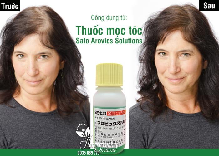 Thuốc mọc tóc Sato Arovics Solutions 5% Nhật Bản lọ 30ml 1