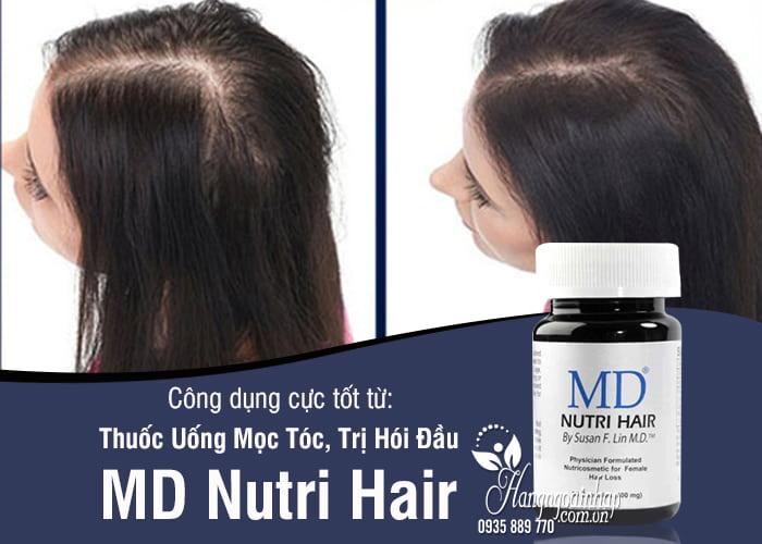 Thuốc Uống Mọc Tóc, Trị Hói Đầu MD Nutri Hair 1