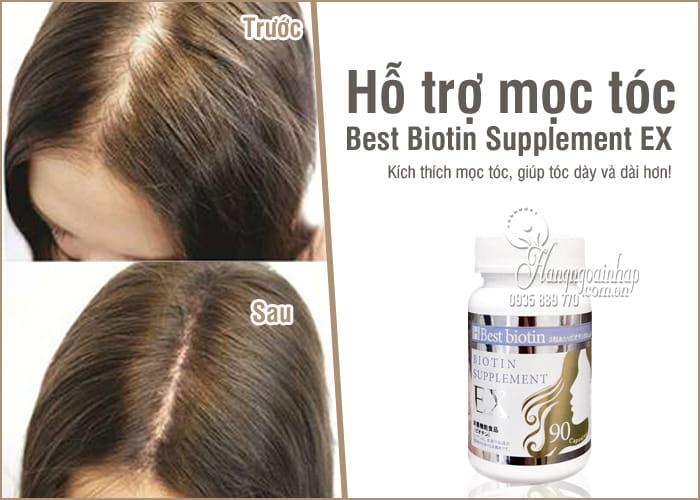 Viên uống hỗ trợ mọc tóc Best Biotin Supplement EX 90 viên Nhật 8