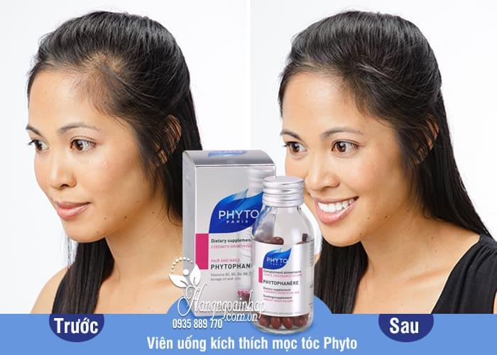 Viên uống kích thích mọc tóc Phyto chính hãng Pháp 120 viên 7