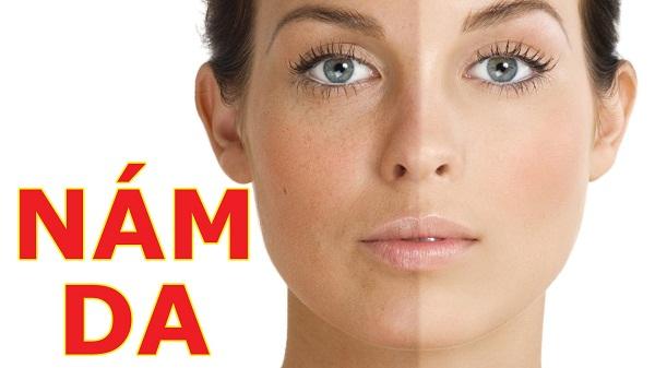 Tìm hiểu nguyên nhân gây nám da và cách trị nám da hiệu quả