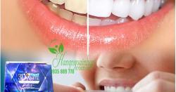 Miếng dán trắng răng crest 3d white có tốt không ?