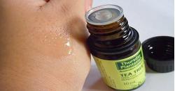Cách sử dụng Tea Tree Pure Oil trị mụn hiệu quả của chị em