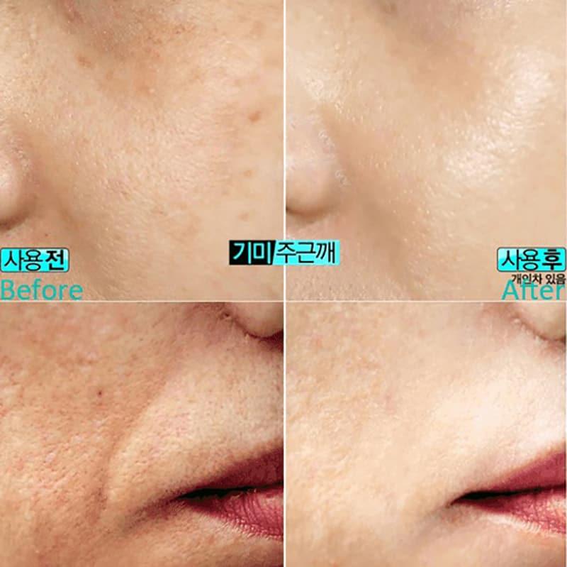 Kem dưỡng trắng da Cloud 9 Complex Whitening Cream 50ml Hàn