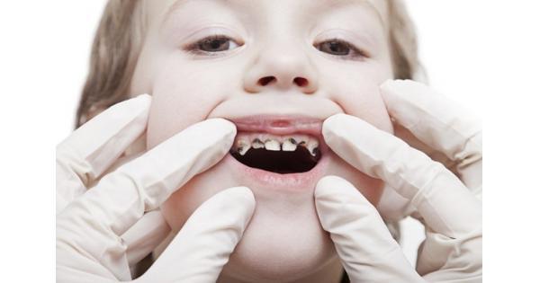Một số bệnh về răng miệng thường gặp và cách phòng tránh