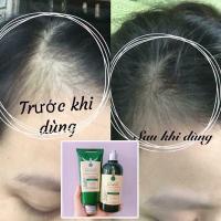 Bộ gội xả gừng tươi Weilaiya giá tốt, ngăn rụng tóc hiệu quả