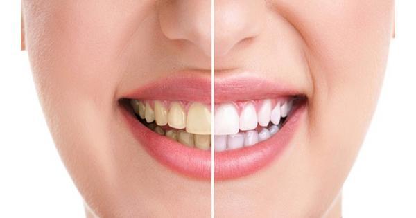 7 nguyên nhân khiến răng ố vàng, không phải ai cũng biết