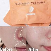 Mặt nạ Royal Placentiner Medi Mask Nhật Bản, hộp 5 miếng