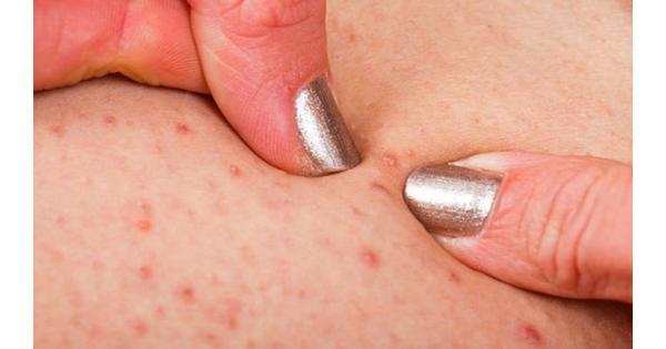 [Giải đáp] Kem trị viêm nang lông nào tốt nhất hiện nay