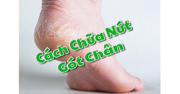 Cách chữa nứt gót chân hiệu quả nhất?