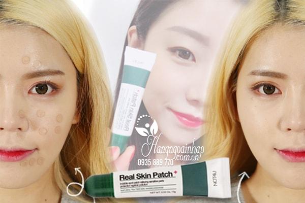 Gel che mụn thần thánh Not4U Real Skin Patch 15g của Hàn Quốc