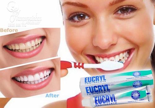 Kem đánh trắng răng, trị hôi miệng-Eucryl Toothpaste 50ml của Anh
