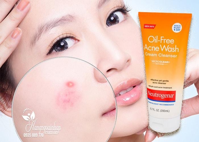 Sữa rửa mặt Neutrogena Oil-Free Acne Wash 200ml của Mỹ