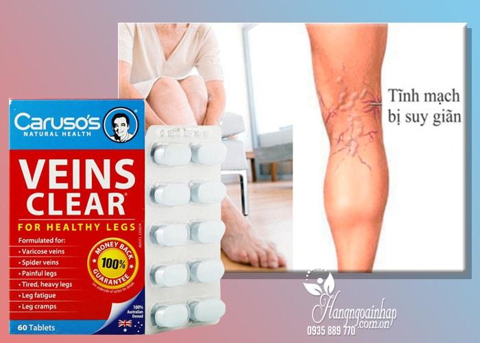 Thuốc trị suy giãn tĩnh mạch Caruso's Veins Clear của Úc