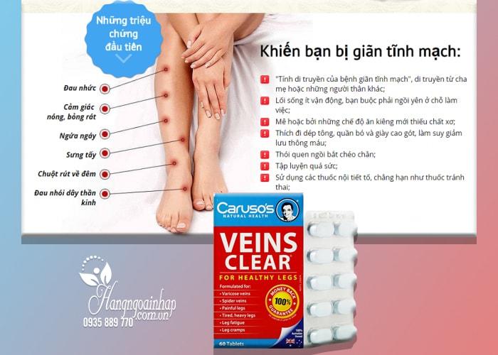 Thuốc trị suy giãn tĩnh mạch Caruso's Veins Clear