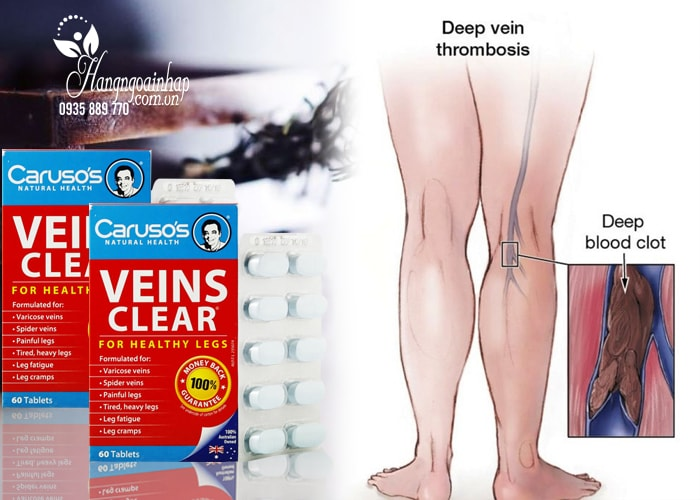 Thuốc trị suy giãn tĩnh mạch Caruso's Veins Clear 60 viên của Úc