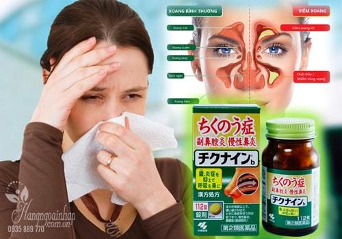 Thuốc đặc trị viêm xoang Kobayashi Chikunain 112 viên của Nhật
