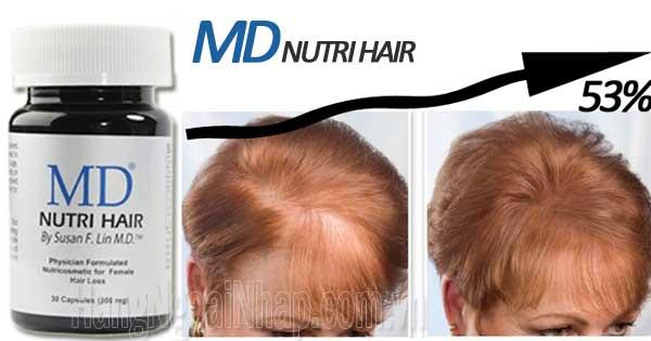 MD Nutri Hair thuốc mọc tóc trị hói đầu