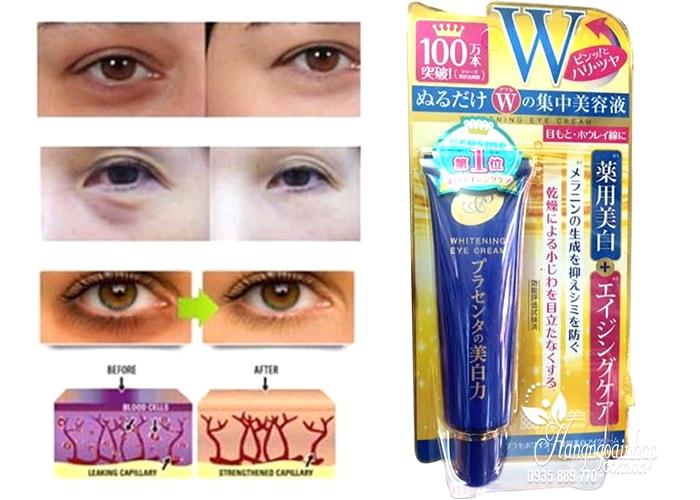 Kem trị thâm và nhăn mắt Meishoku Whitening Eye Cream 30g