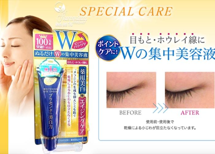 Kem trị thâm và nhăn mắt Meishoku Whitening Eye Cream 30g của Nhật