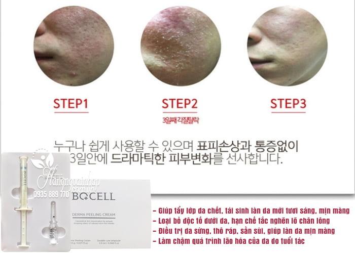 Tẩy da chết và tái tạo da Bqcell Peeling Derma Cream 4