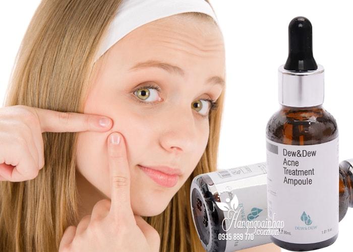 Serum đặc trị mụn Dew & Dew Acne Treatment Ampoule 30ml