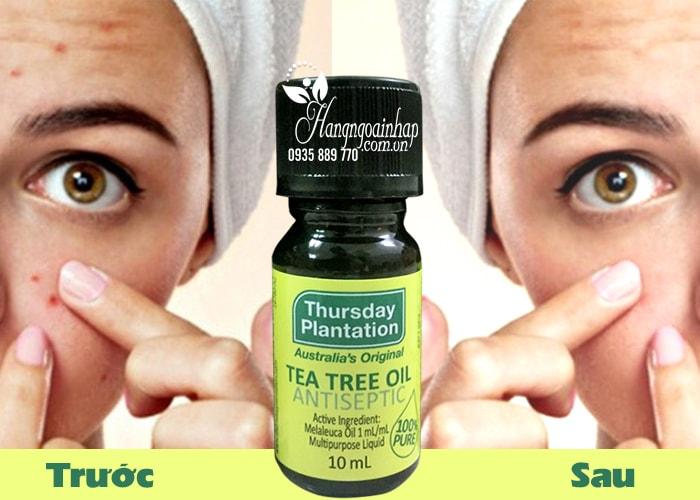 Tinh dầu tràm trà trị mụn Thursday Plantation Tea Tree Oil 10ml  của úc