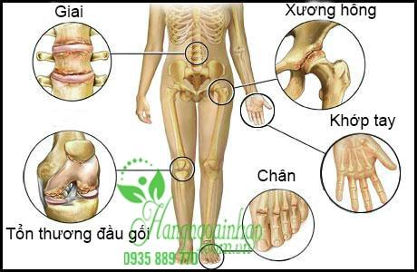 bí quyết hỗ trợ giảm đau nhức xương khớp